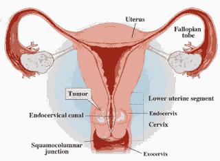 Apa itu Kanker Serviks?