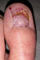 Big Toenail Removal - Left Foot - 10 Weeks & 4 Days