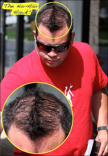 moicano Com ou sem cabelo...