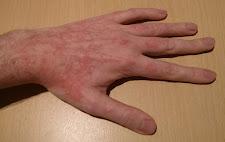 Skin GVHD - Left Hand