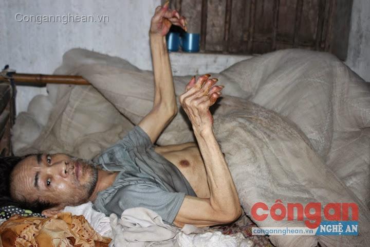 Ông Thu nằm liệt giường 7 năm nay sau một vụ tai nạn
