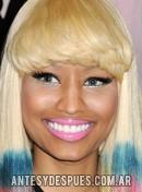 Nicki Minaj,