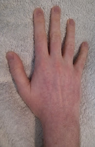 Skin GVHD - Hand Before Shower