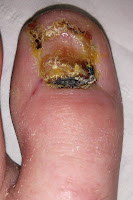 Big Toenail Removal - Left Foot - 6 Weeks & 4 Days
