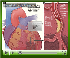 Health Tips: Stress management: heart attack causes