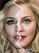 Famosas que usan botox
