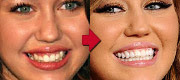 20 Best Celebrity Teeth