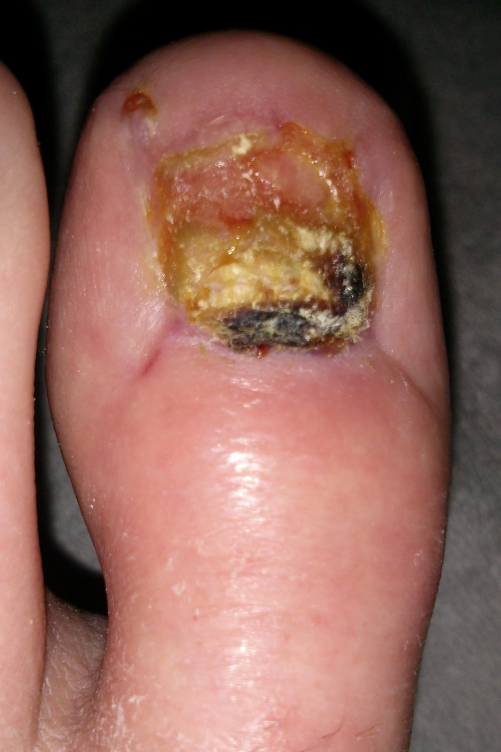 how to remove a live toenail