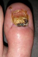 Big Toenail Removal - Left Foot - 8 Weeks & 4 Days