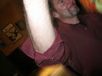 Todd Wynn's very white arm
