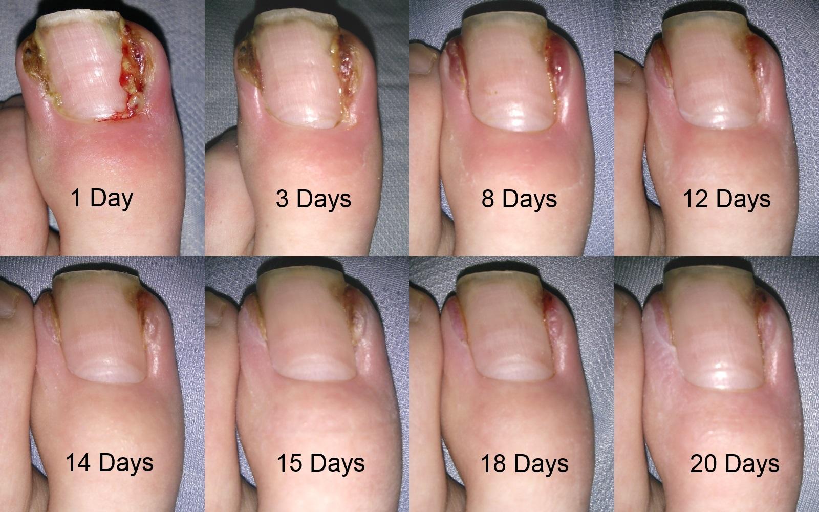 Infected Ingrowing Toenail Left Toe Treating Pseudomonas Aeruginosa With Tazocin