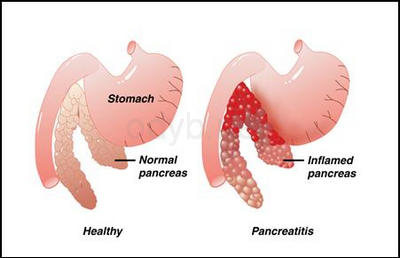 Drinking above recommended limits can lead to stomach ulcers, internal ...