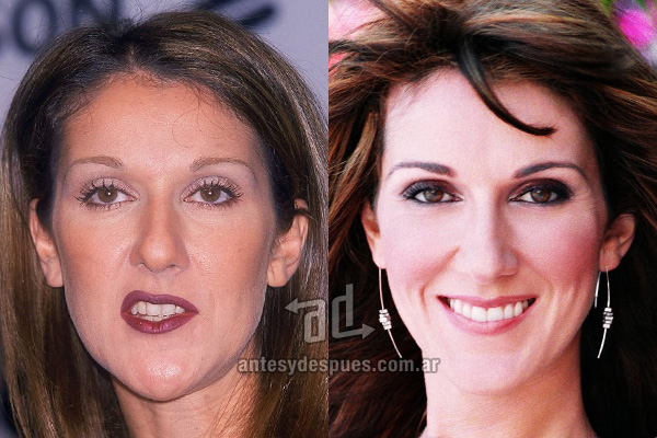 The new smile of Celine Dion, afterdental surgery