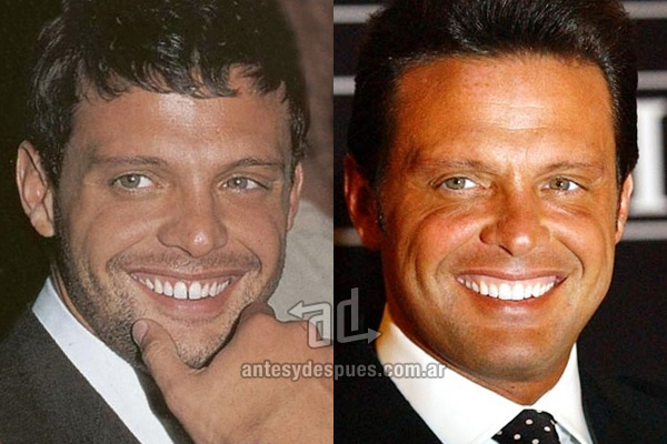 The new smile of Luis Miguel, afterdental surgery