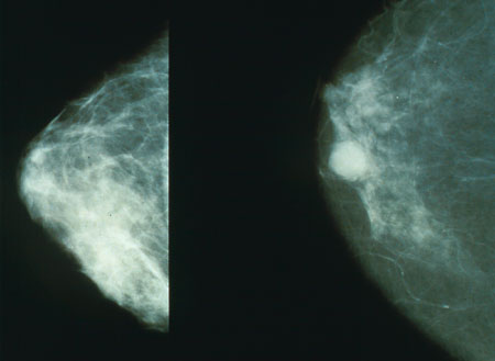 Heart scans: Mammogram of the heart