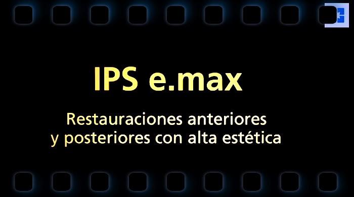IPS-e.max