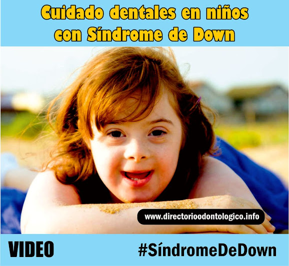 salud-bucodental-sindrome-down