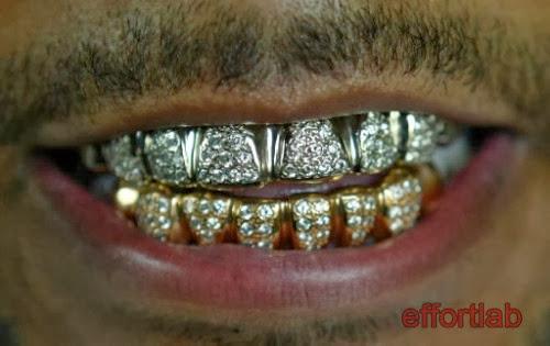 teeth-grills