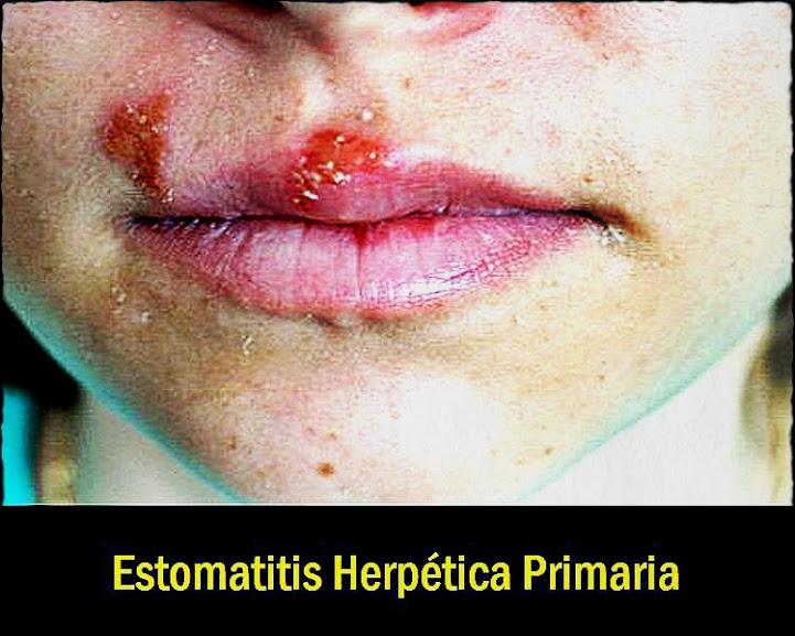 Estomatitis-Herpetica-Primaria