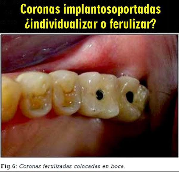 coronas-implantosoportadas