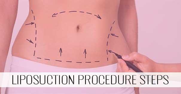 Liposuction Procedure Steps - Desire Aesthetics