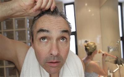 米ペンシルバニア大など、男性型脱毛症の原因物質を発見 仕組みや作用も解明 新薬に期待
