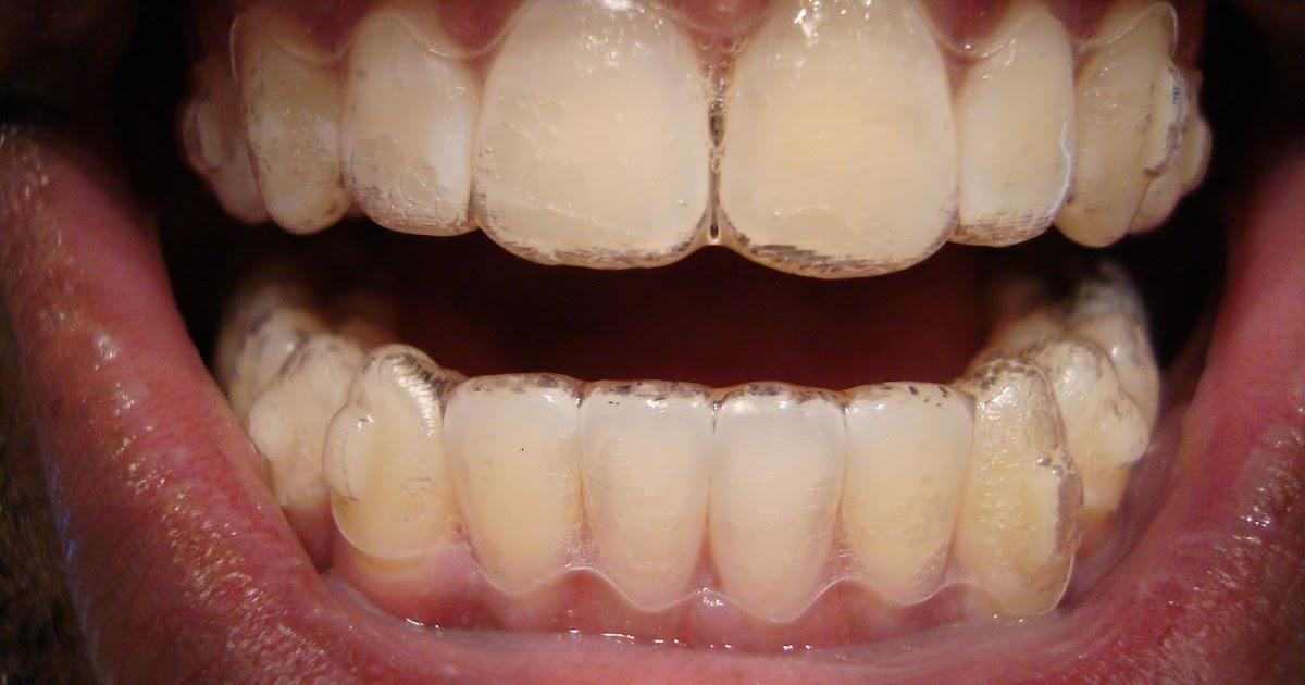 Food Thats Good For Teeth