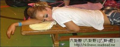 睡美人症怪病【睡美人症怪病 克萊李文綜合症】
