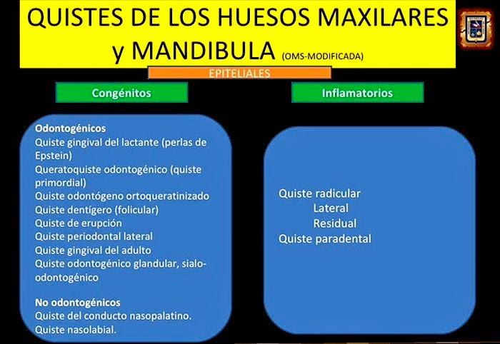 Quistes-Maxilares