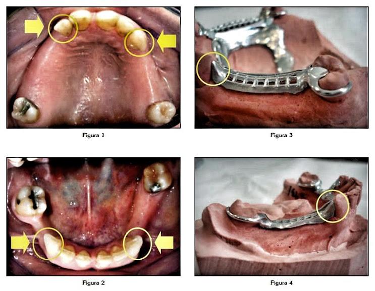 protesis-parcial-removible