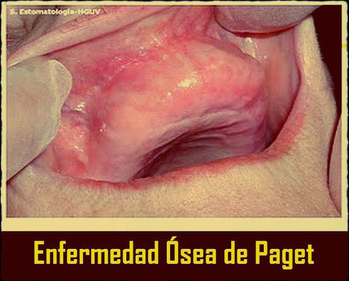 enfermedad-osea-paget