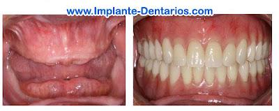 foto de implante dentario