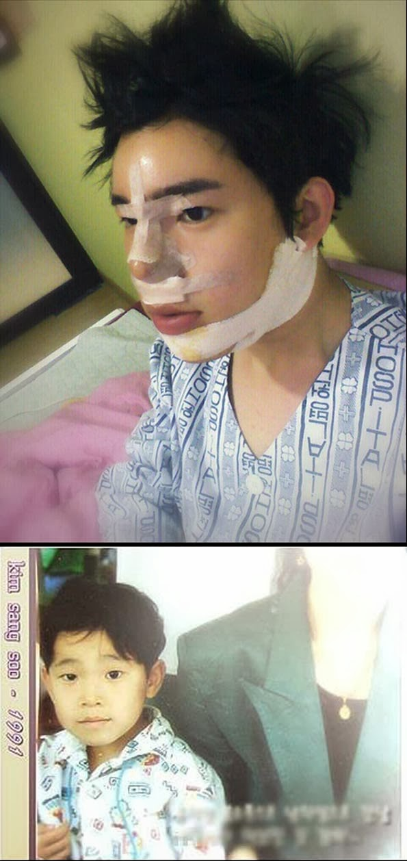 blog serius serius vs   sebelum dan selepas pembedahan