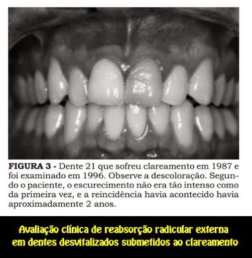 Reabsorção-radicular