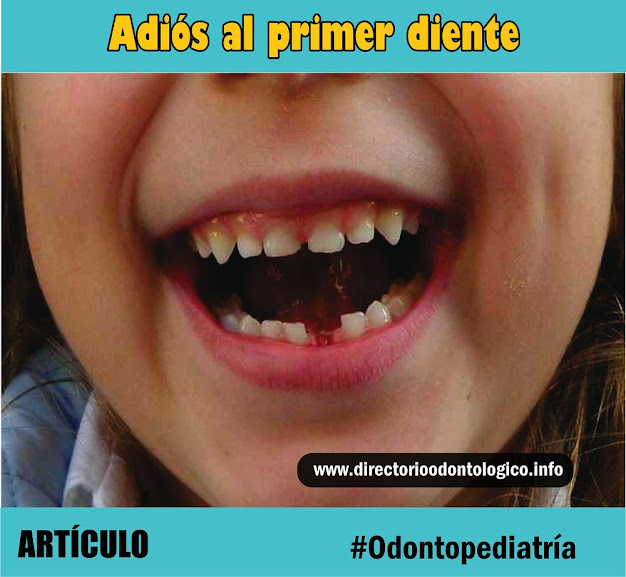 primer-diente-caido