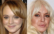Celebrities before and after Botox