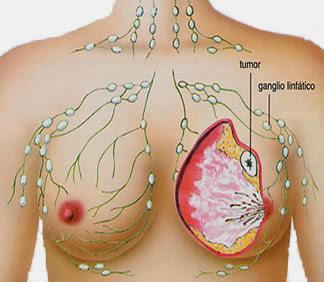 Penyakit Kanker Payudara