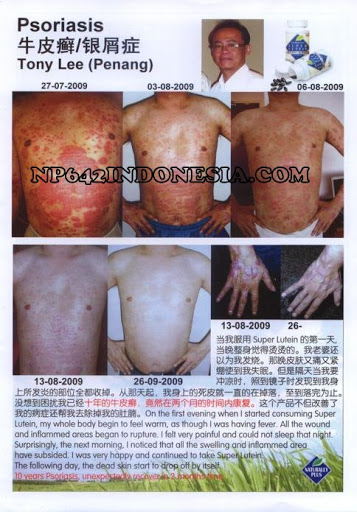 Psoriasis is a complex disease which affects not only the skin but the whole body 2