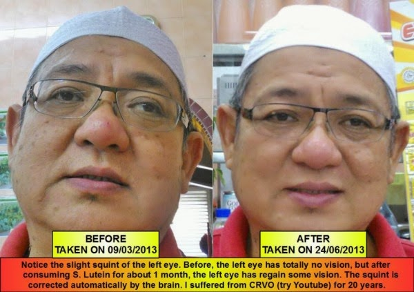 Perbaikan Mata CRVO