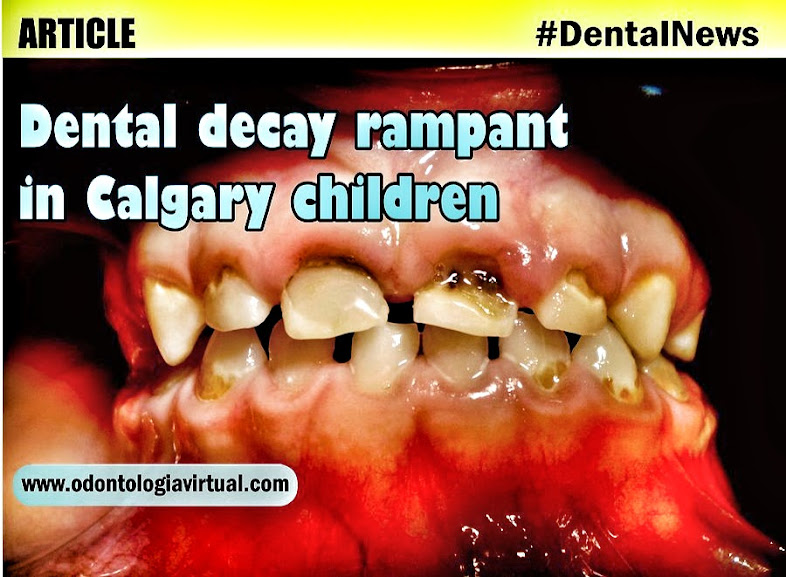 Dental decay rampant