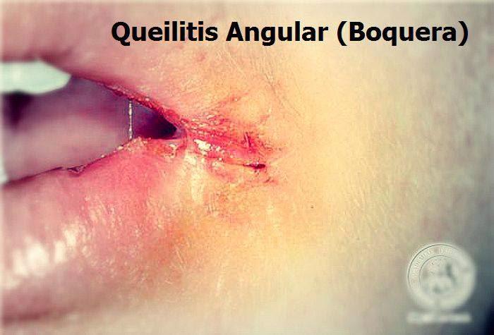 Queilitis-angular