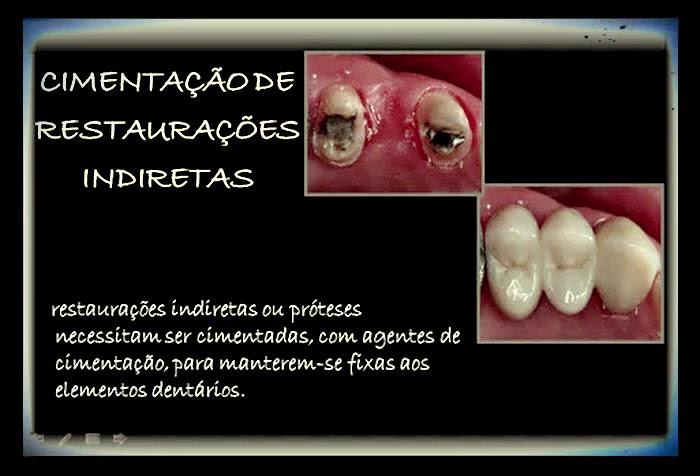 coroas-protéticas