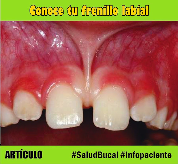 frenillo-labial
