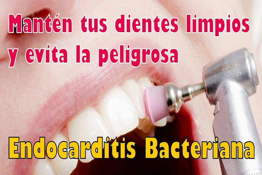 endocarditis-bacteriana