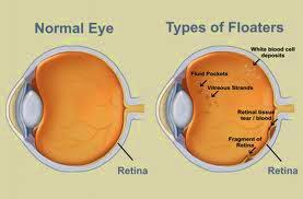 Herbal Mata Floaters, Bayangan Hitam Pada Mata
