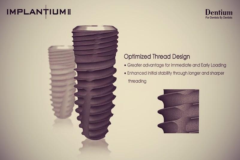 Implantium-ll