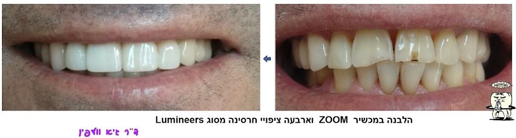 לומינירס Lumineers ציפויי חרסינה וולפין הלבנה ZOOM חיוך אסתטיקה דנטלית