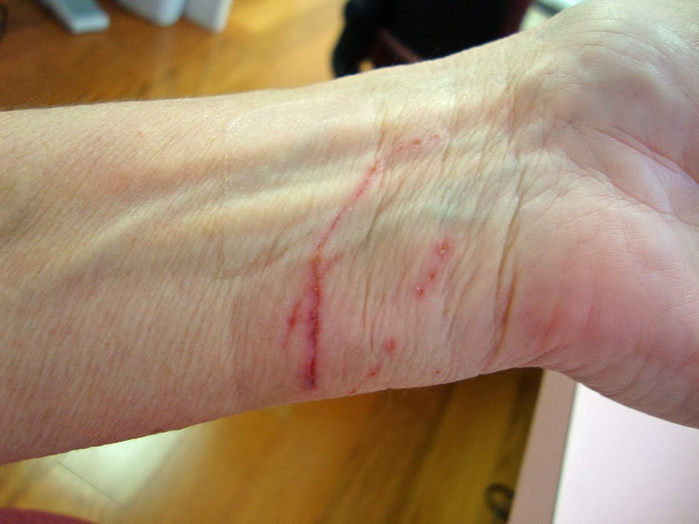 how to tell if a cut is going to scar