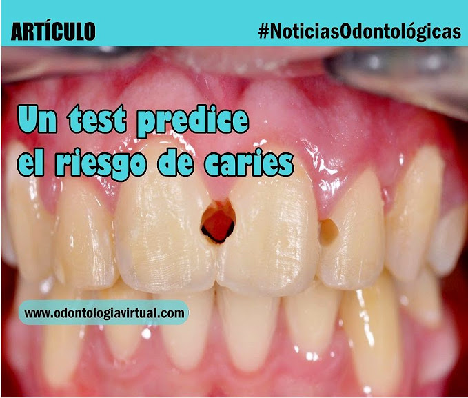 test-caries