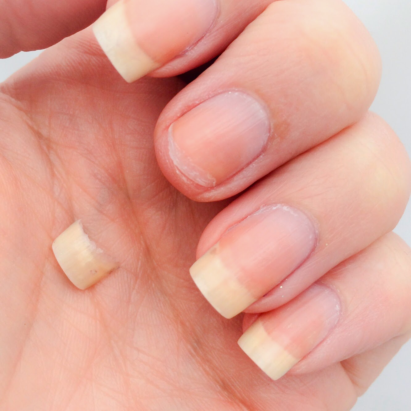 MD nail ART: Fix A Broken Nail : Don\'t Sit And Cry About It